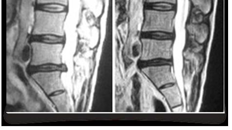 Laser Enhanced Spinal Decompression Douglas, Cork